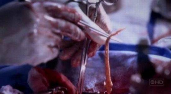 pénisz egérfogóban