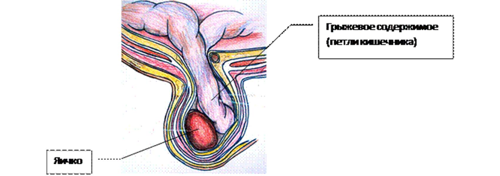 hogyan lehet erekciót emelni népi gyógymódokkal)