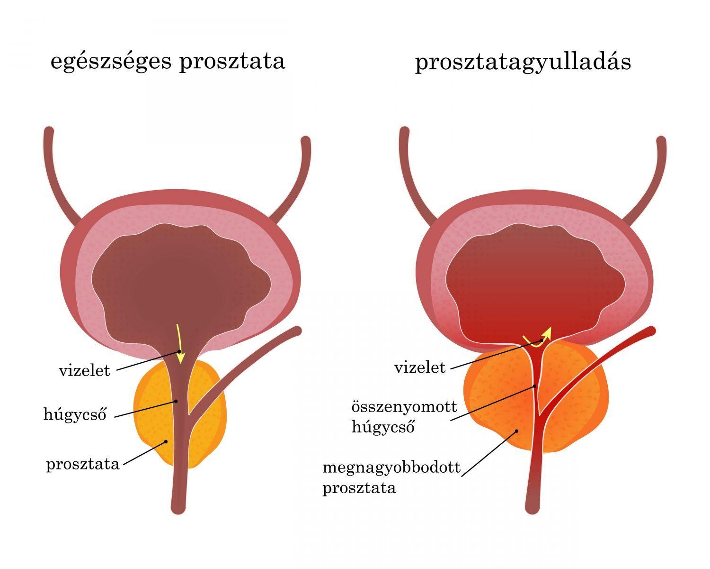 a prosztatagyulladás erekciójának hatása