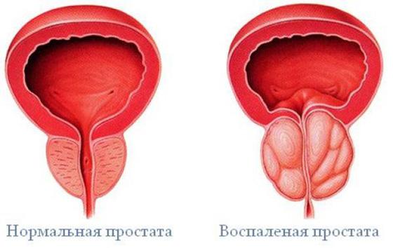 a prosztatagyulladás erekciós kezelésének hiánya