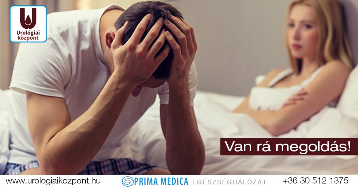 pszichés merevedèsi zavar kezelése