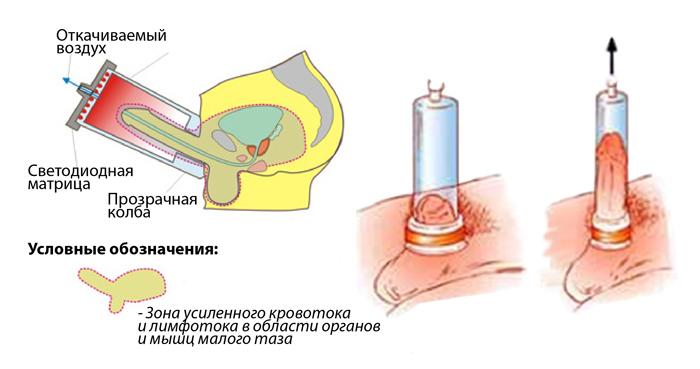 Vákuum pumpák férfiaknak