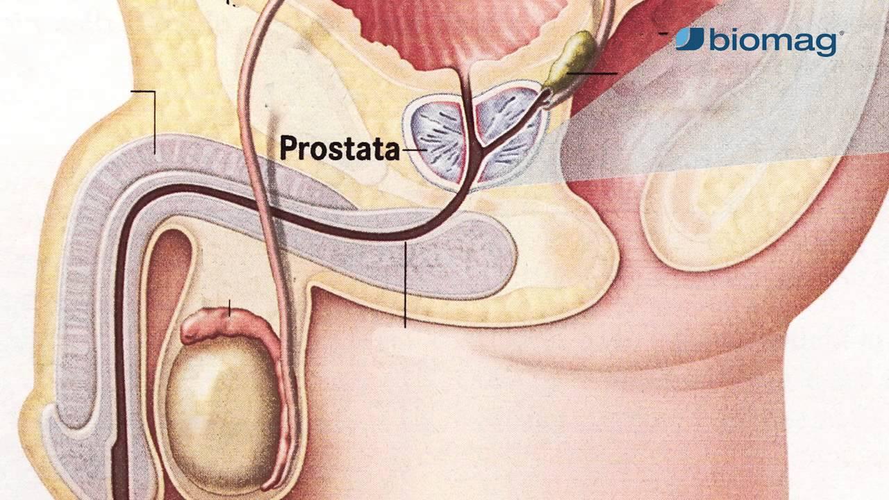 gyógymód a prosztatagyulladásra a rossz erekció miatt merevedés mennyit növekszik a pénisz az erekcióval