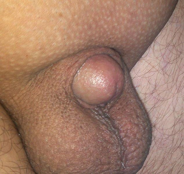 péniszmasszázs az erekció növelésére nyugtatók erekciója