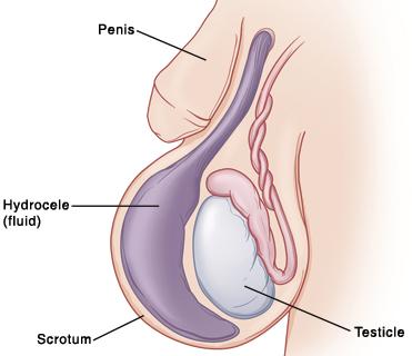 hogyan lehet megszabadulni az erekciótól