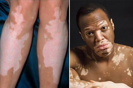 amikor a bőr a péniszen van)