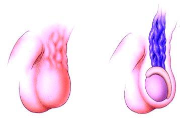 Bal oldali varicocele okozhat-e erektilis diszfunkciót?
