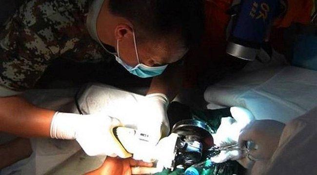 péniszcső műtét