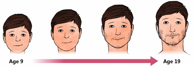 Hypospadiasis a fiúkban: a fejlődés okai és a főbb kóros típusok - Pyelonephritis -