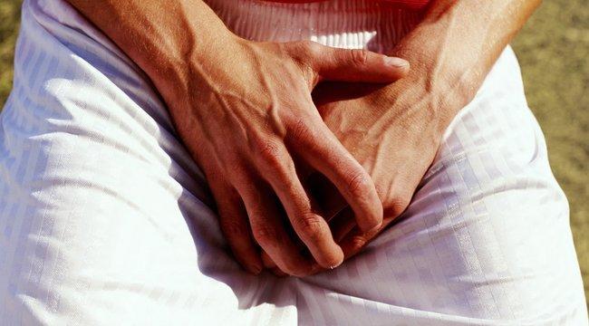 Nem túl gyakori, de kényes probléma! Varikózis pénisz: tünetek, okok és kezelés