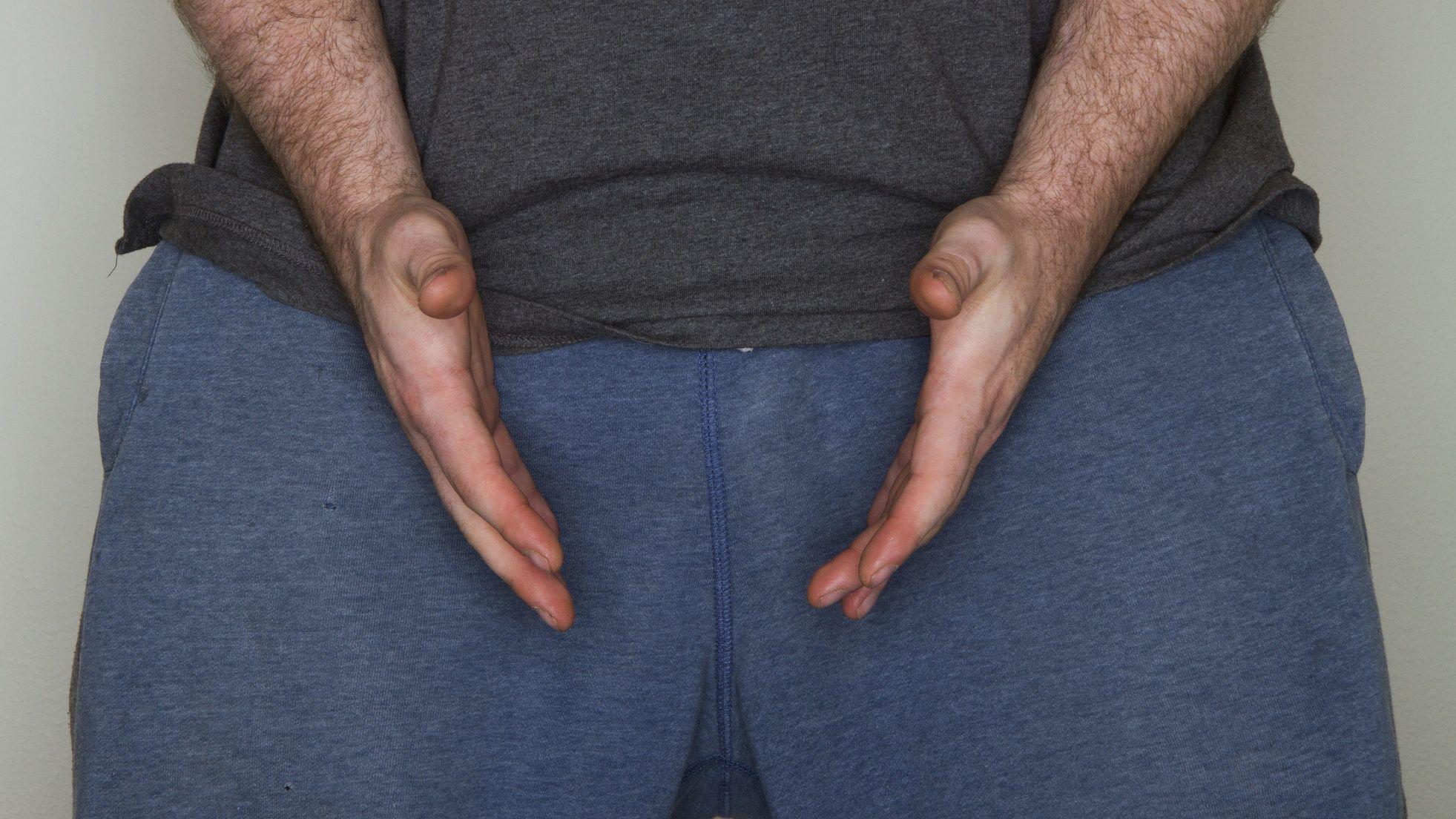 nő pénisz műtét