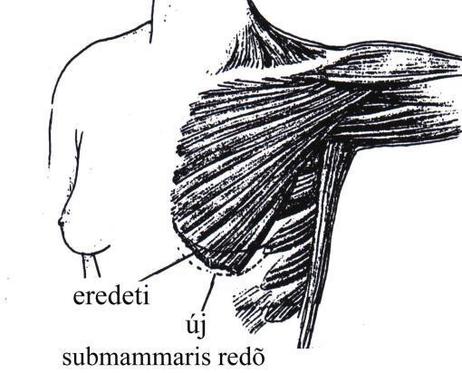 az erekció leghatékonyabb serkentője mi okozhat lassú merevedést