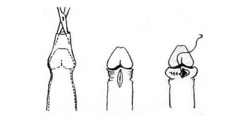 pénisznagyobbító műtét után