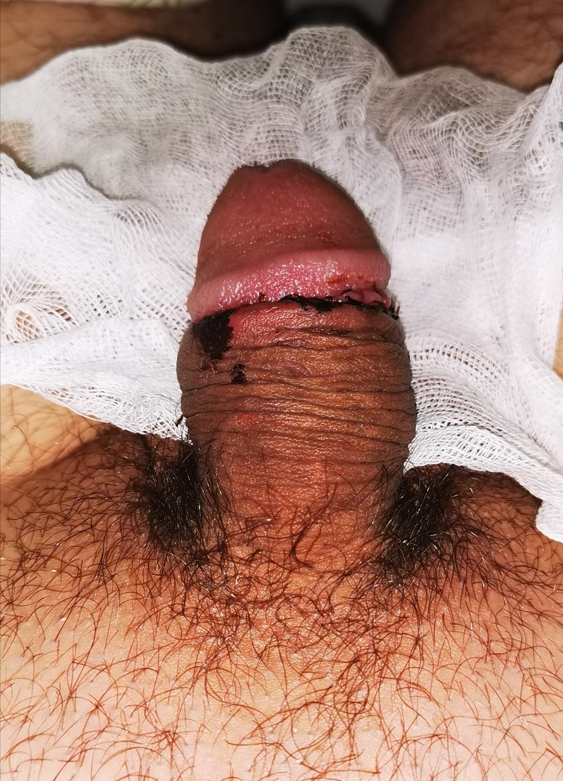 fasz az erekció után gyorsan leesik)