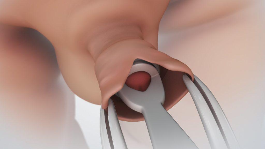 erekció körülmetélés