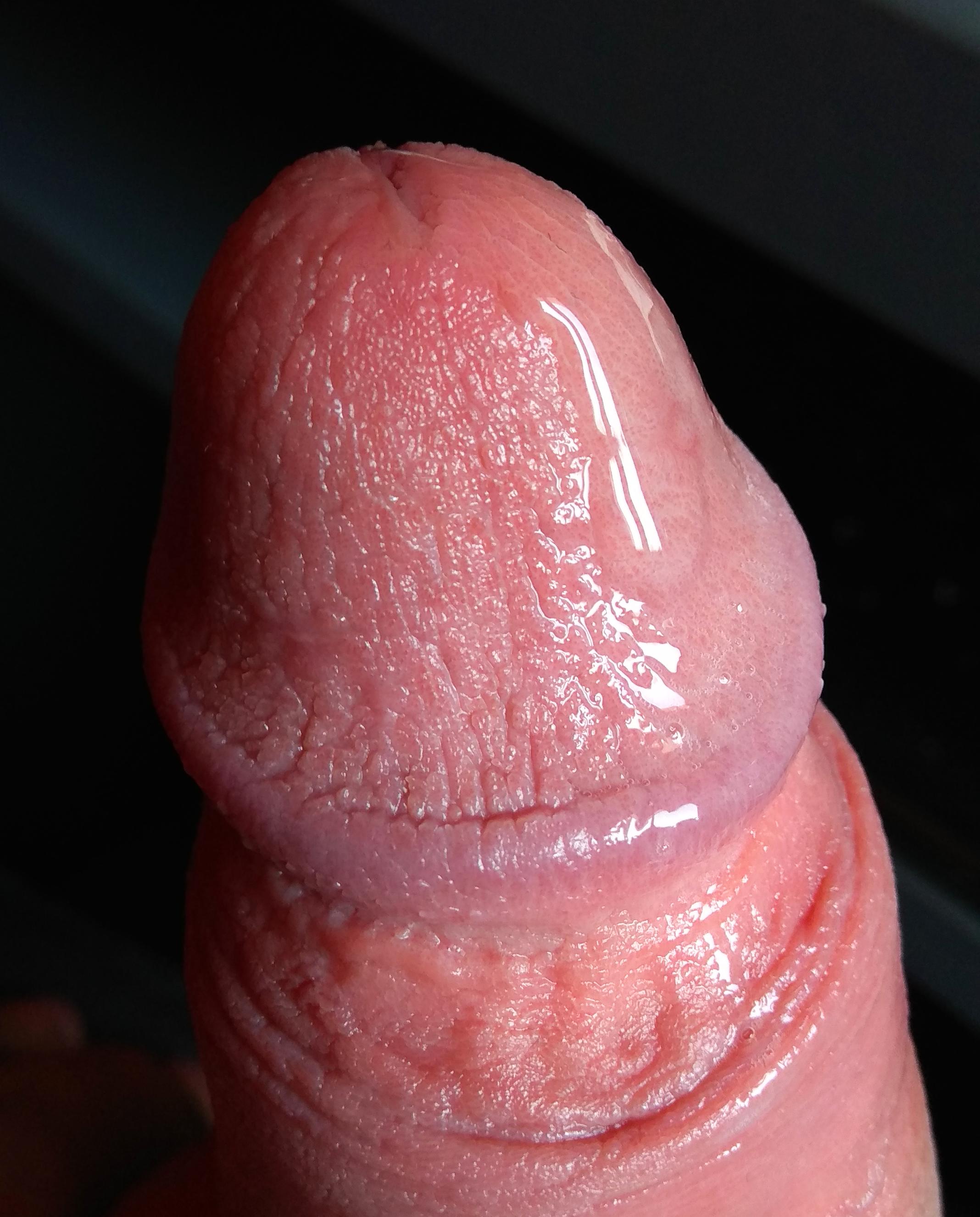 mit csinálhat pénisz hüvely