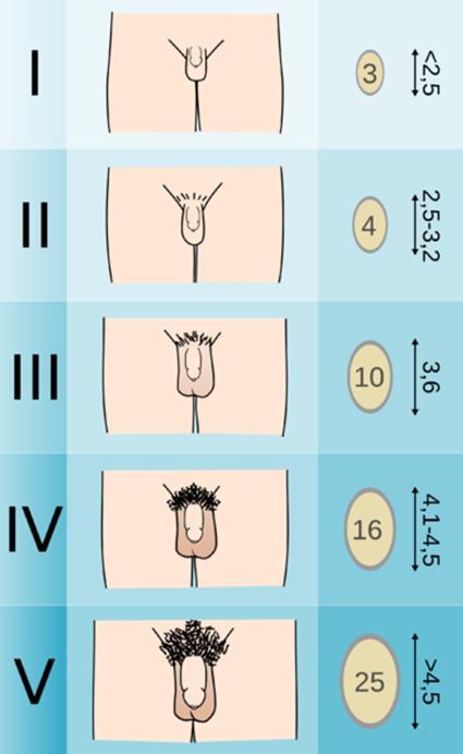 pénisz típusok és méretek