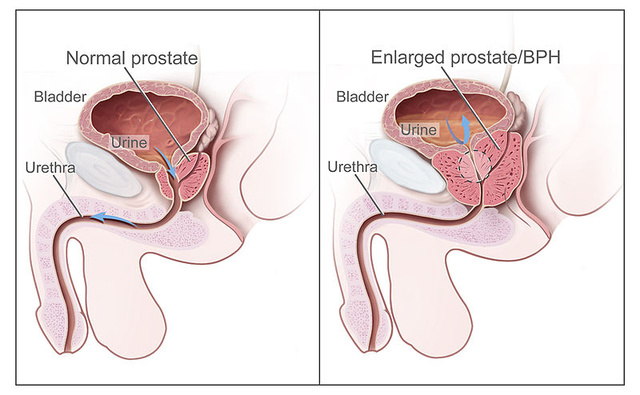 5 gyakori férfias probléma - Útikalauz anatómiába