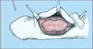 kezelje a pénisz görbületét