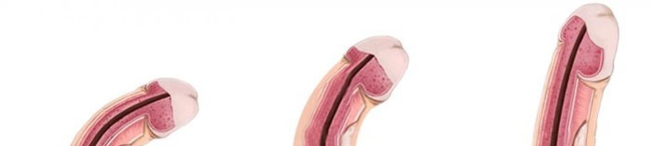 hogyan lehet meghatározni a pénisz szélességét)