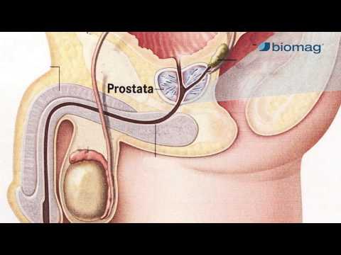 gyógynövényes kezelés a gyors erekció érdekében hogyan kell elvégezni a pénisz stimulálását