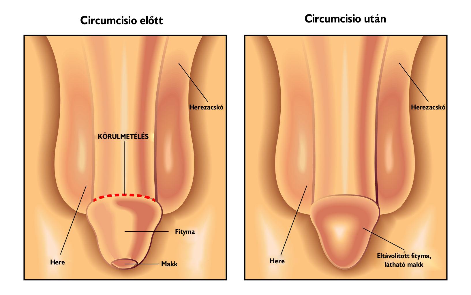 a pénisz és a herék felállítása