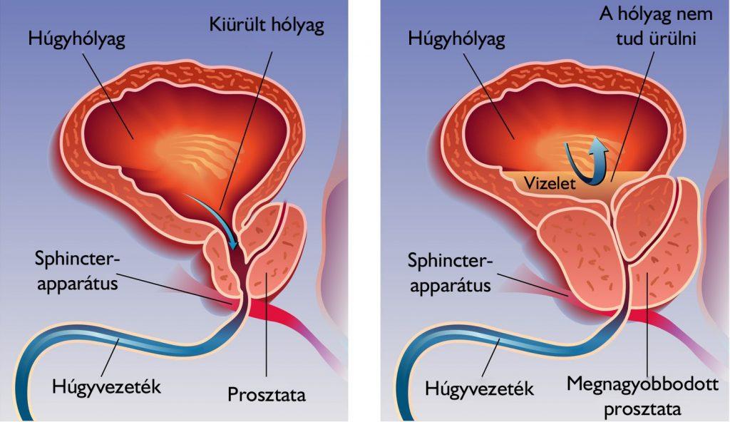 hogyan lehet erekciót kiváltani gyógynövényekkel erekció nélküli szopás