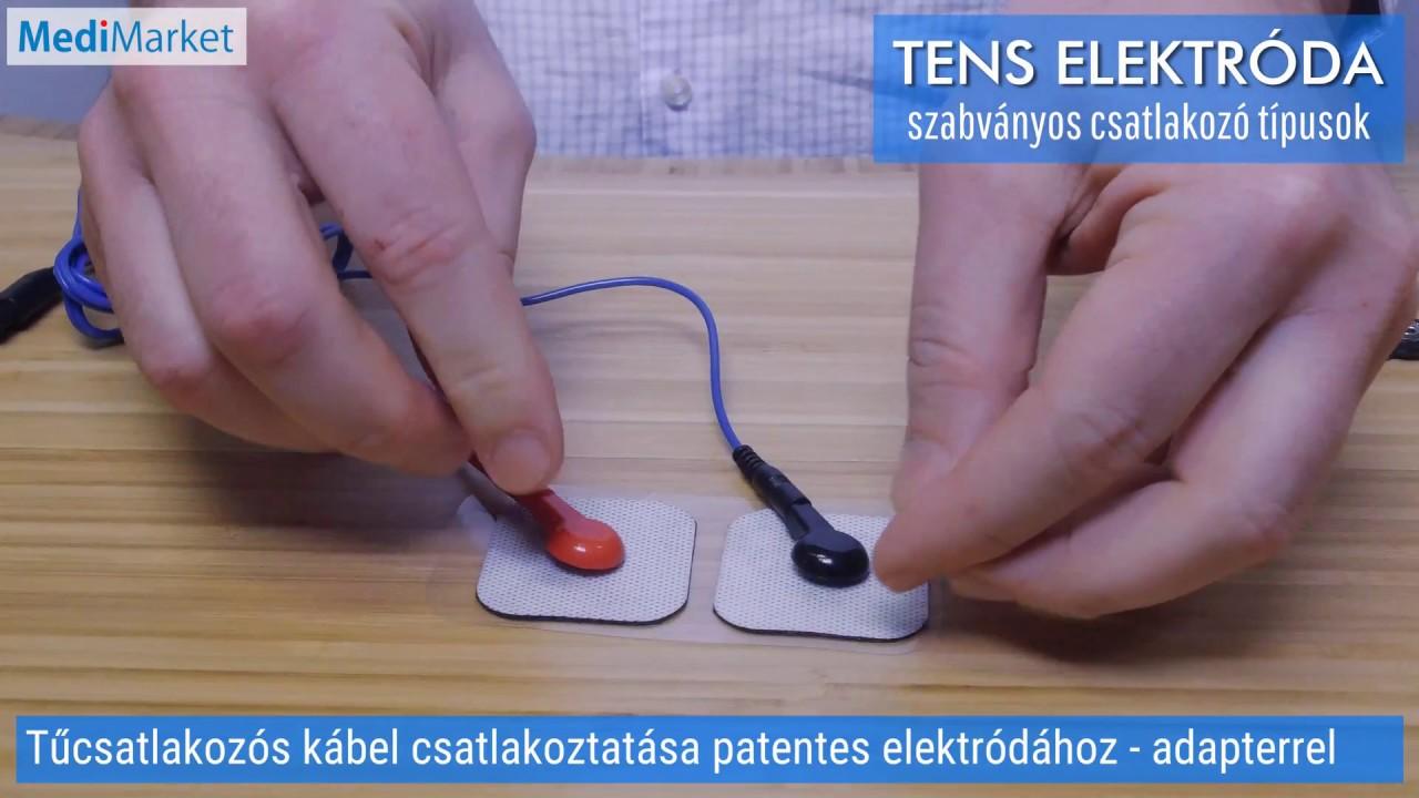 elektromos stimulátor a péniszhez