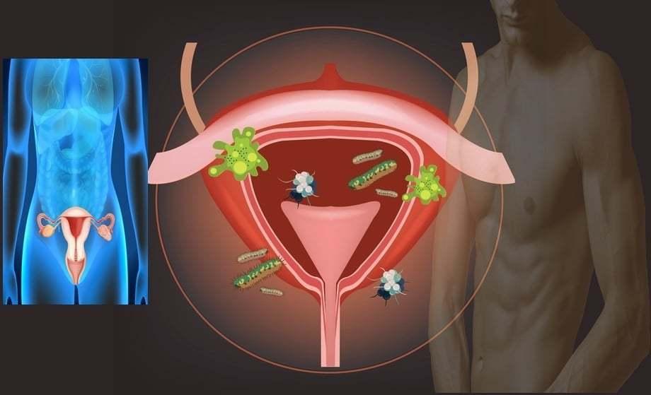 ureaplasmosis és erekció)