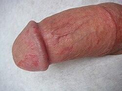 erekcióval történő körülmetélés után a pénisz fáj