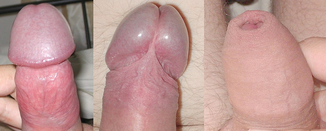 körülmetélt pénisz erekcióval)