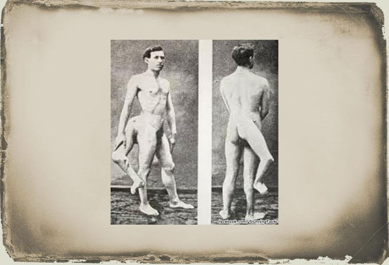 két pénisszel rendelkező férfi)