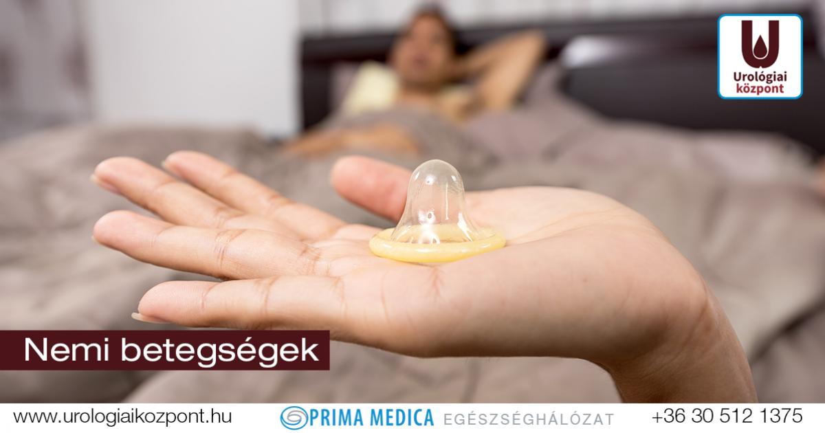 gyógyszerek a hím pénisz megnagyobbodására)