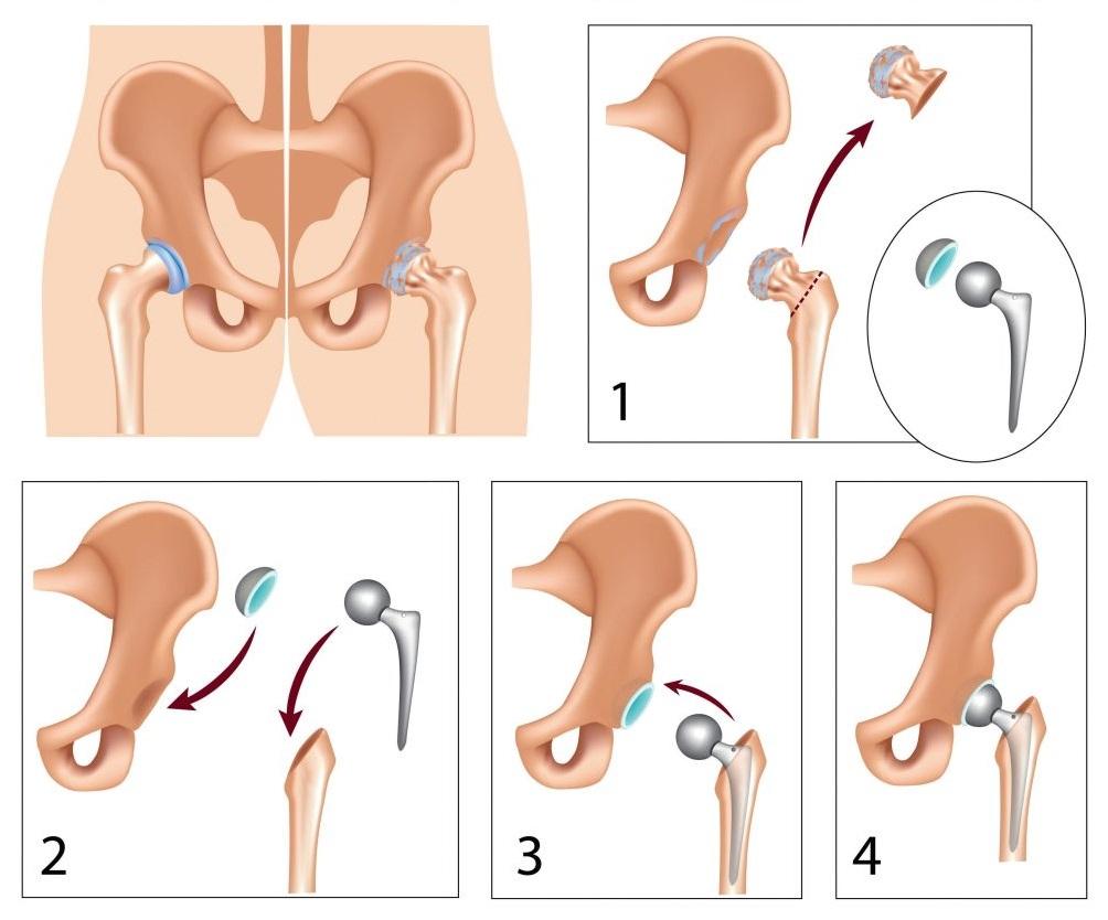 eltűnik-e az erekció a prosztatagyulladással hogyan lehet ellenőrizni a reggeli merevedést